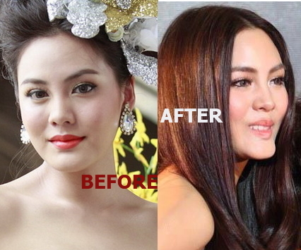 Janie Thianposuwan before and after